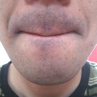 ヒゲ剃り後の状態です。