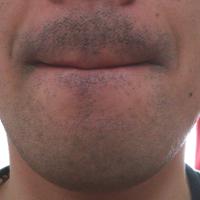 医療レーザー髭脱毛前のビフォーの状態です。
