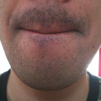 ヒゲ剃り前の状態です。